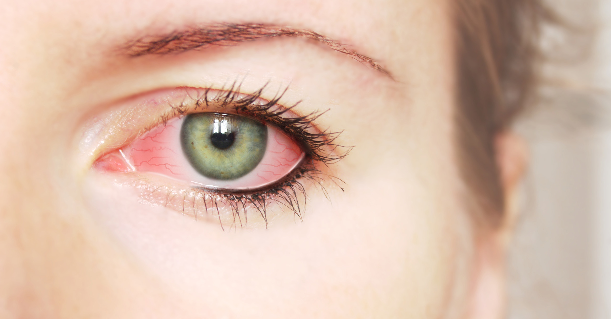How to treat conjunctivitis without risk to health 20