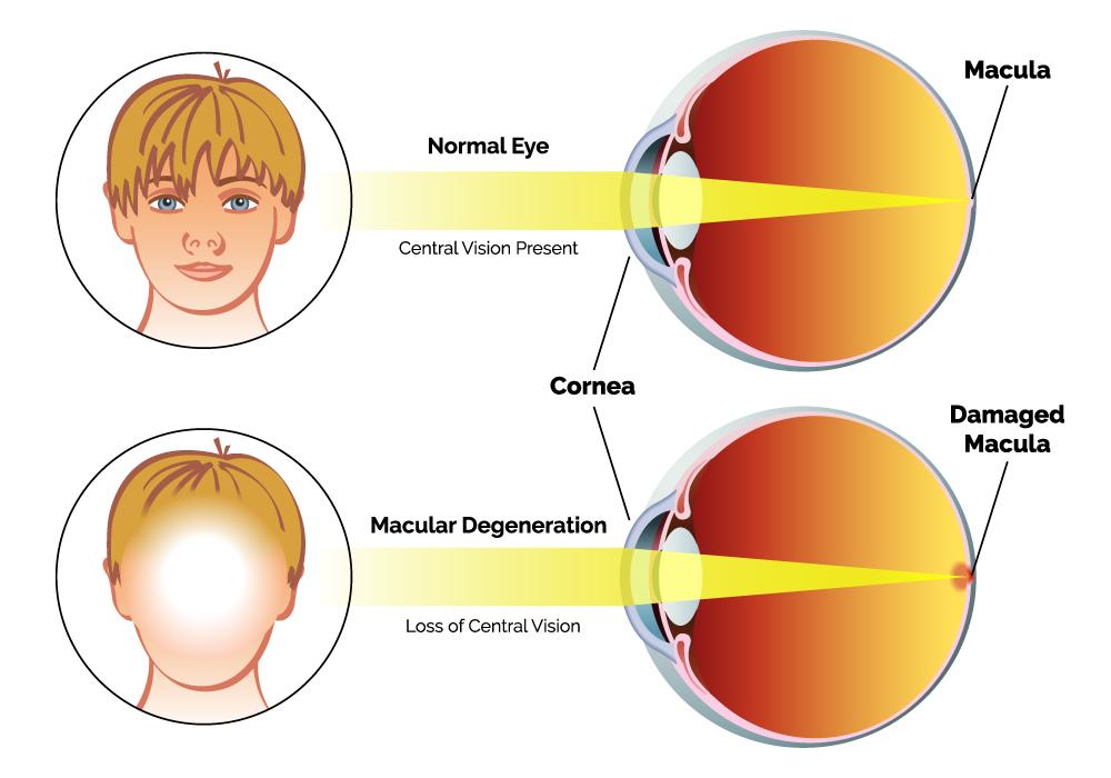macular degeneration vision example
