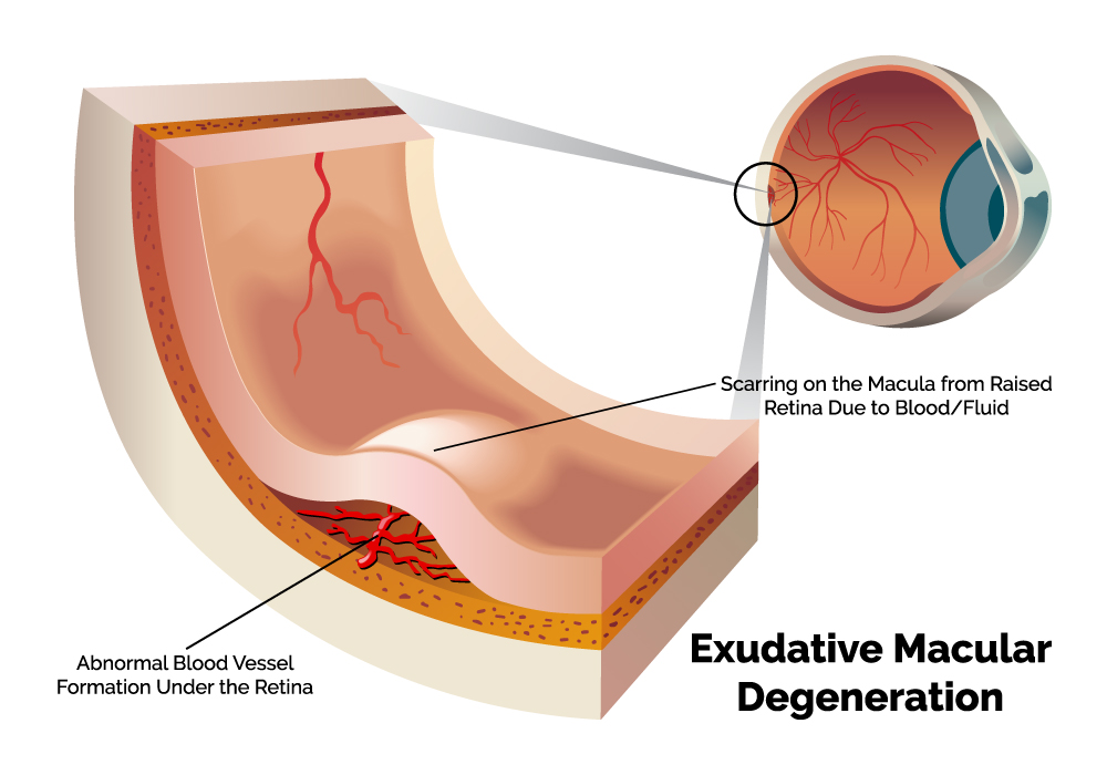 wet macular degeneration diagram