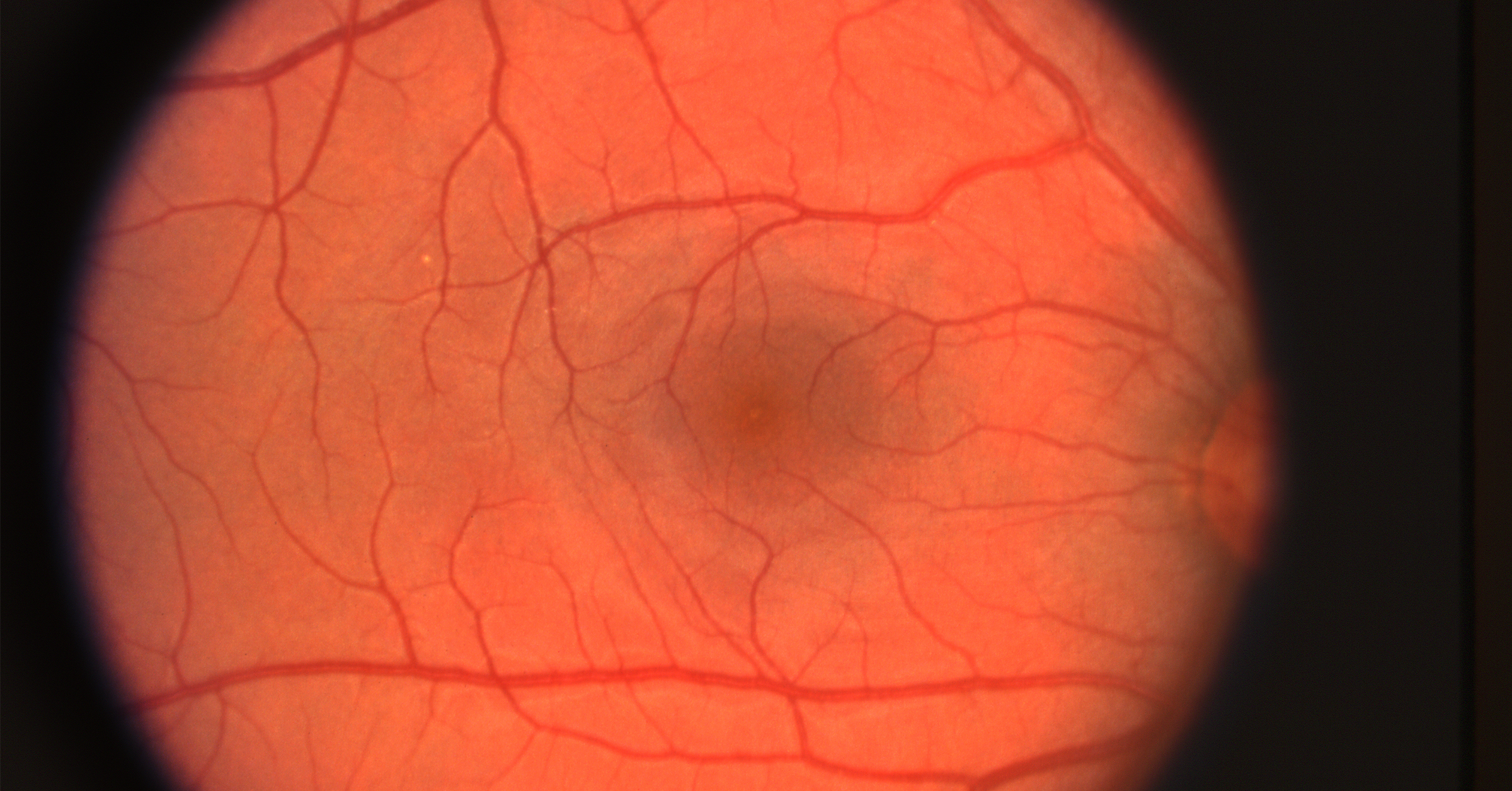 macular degeneration what is